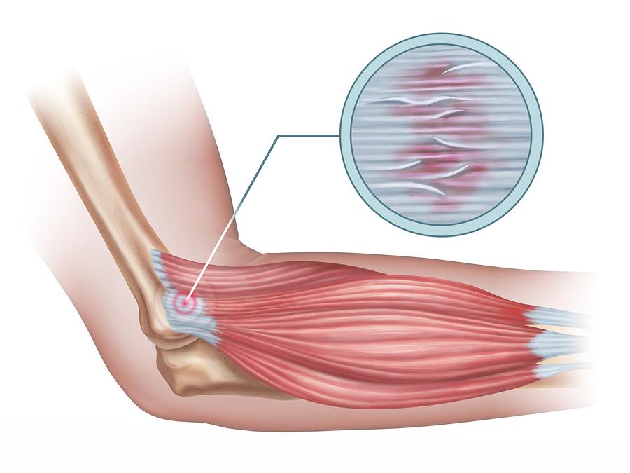 heridas de calistenia